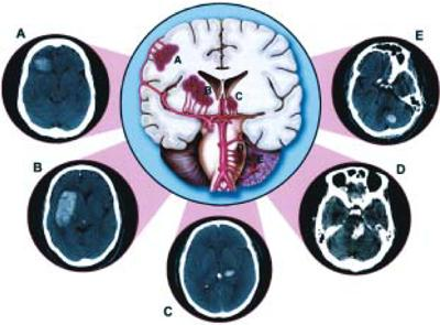 Spontaneous intracerebral hemorrhage causes
